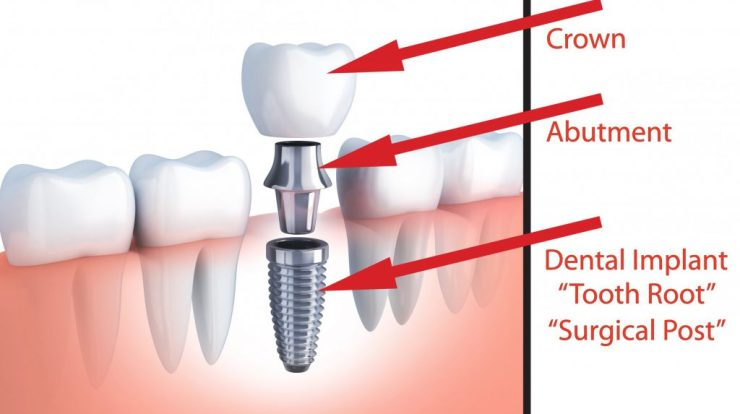 Endosteal implants, types of dental implants