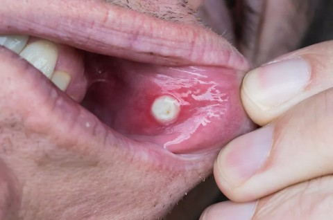 Canker Sores Picture