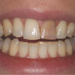 tooth discoloration causes