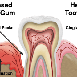 periodontal disease definition