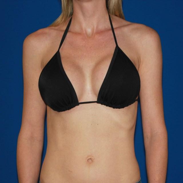 54 105 Lb Patient Following Breast Augmentation D Cup