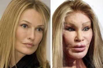 Jocelyn Wildenstein Botched Surgery Photos