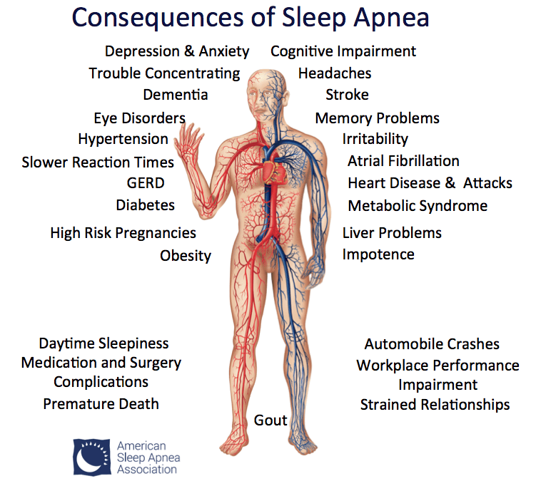 Image result for sleep apnea and dementia