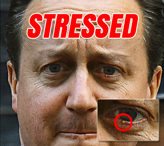 stressed-dave