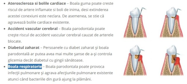 boli ce se asociaza parodontozei