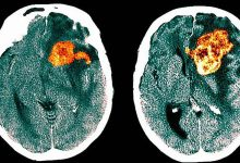 Created a drug against deadly glioblastoma