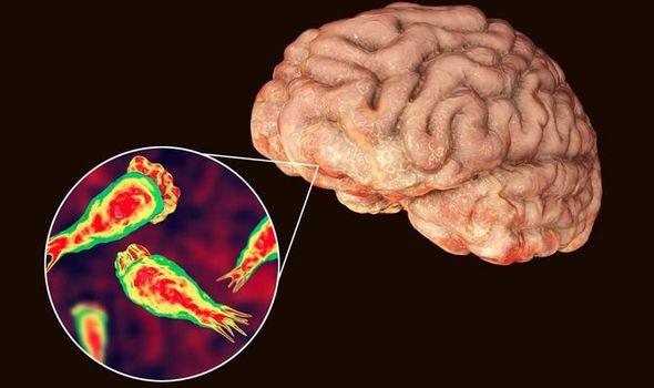 Amoeba discovered devouring human brain