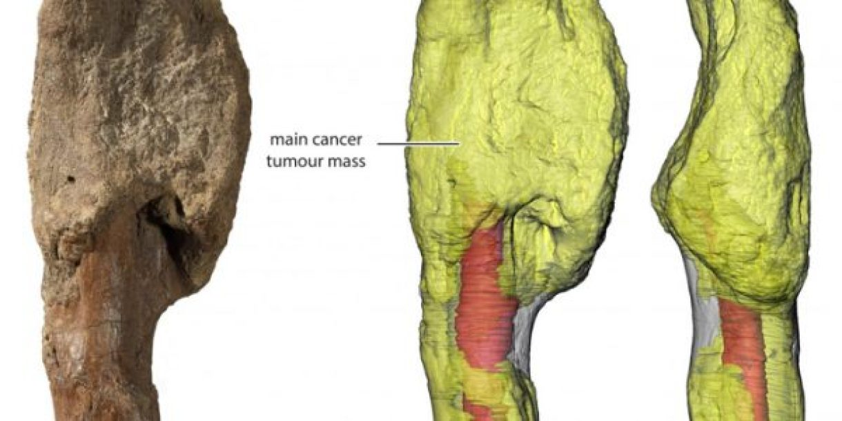 First diagnosed with bone cancer in a dinosaur 2