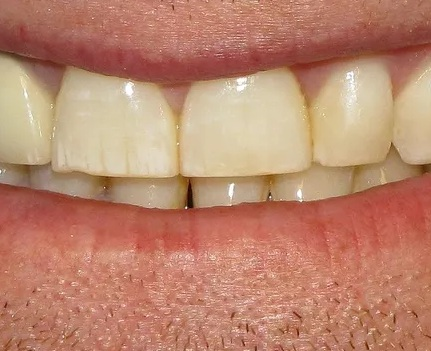 Why do teeth turn yellow