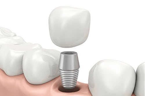 Are Mini Or Traditional Implants Right For You? [INFOGRAPHIC]