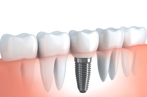 6 Reasons Our Patients Love Dental Implants
