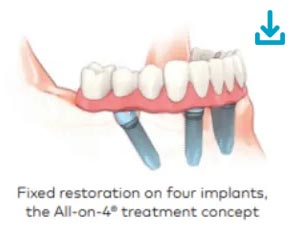 Multiple-teeth-replacement