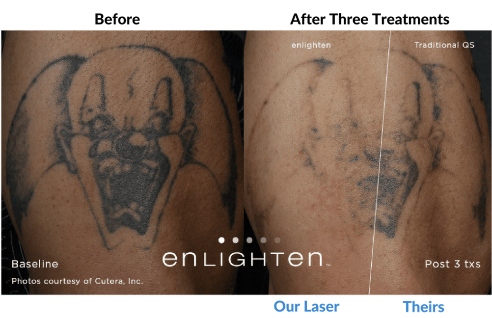 Laser Tattoo Removal Portland - Oregon Tattoo Removal Clinic - About Us