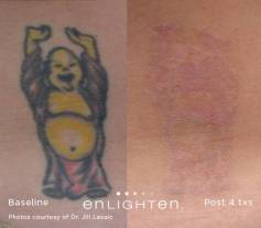 enlighten_Tattoo_Buddha