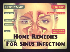 natural home remedies for sinus infections