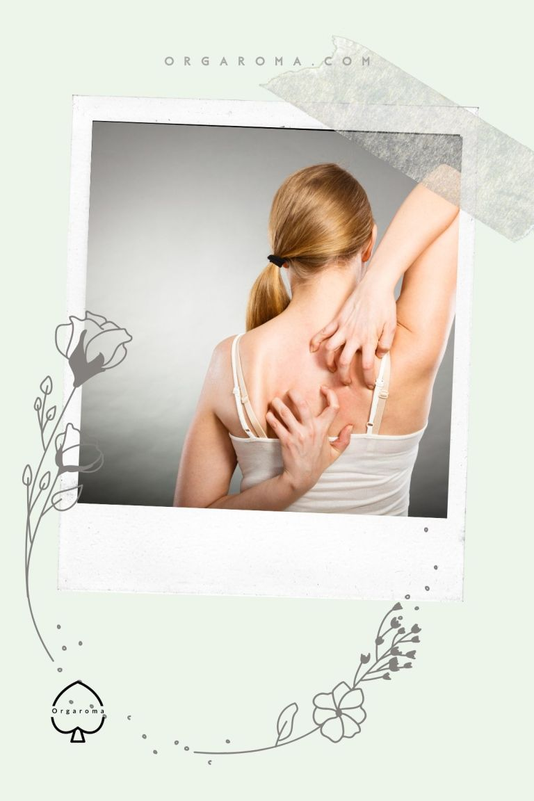 Read more about the article How to avoid squeezing the blackheads on back?