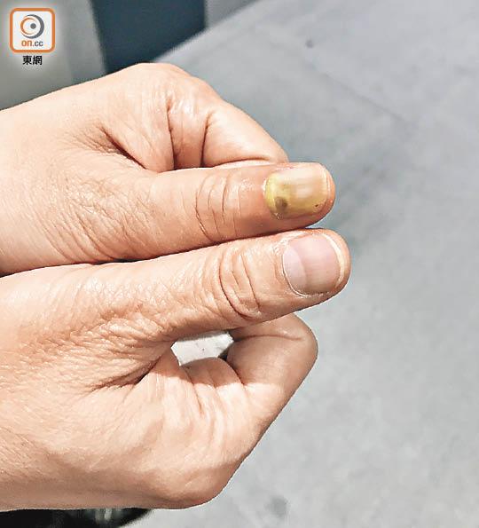 政情:指甲有菌含膿 謝偉銓手指公包到一大舊 - 東方日報