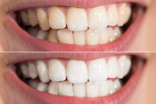 Teeth Whitening – Should I do it?