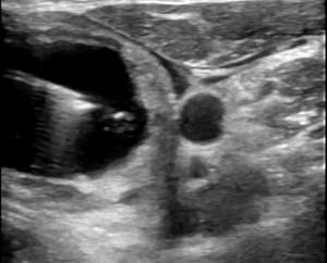 alcolizzazione di cisti tiroidea