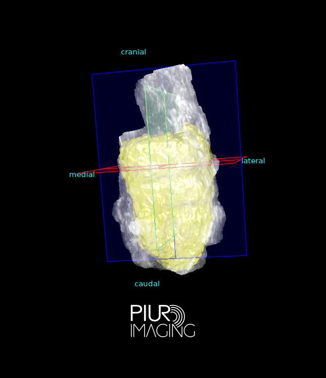 Large right thyroid nodule 3D ultrasound with PIUR tUS Infinity