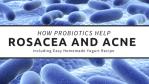 How Probiotics Help Rosacea and Acne
