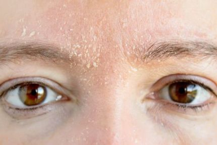transepidermal water loss causes flaky dry skin on forehead