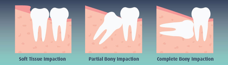 Partial Bony Impacted Wisdom Tooth | Best Dental in Houston, TX