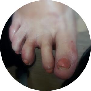 מיישר אצבעות לכף רגל