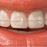 traitements adultes - bracket transparent