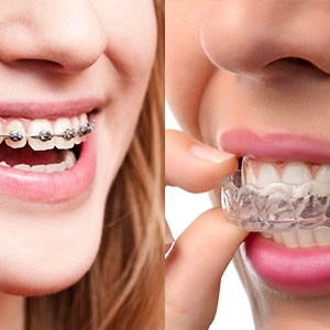 ODS Aligners are metal free
