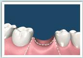 d-implant01