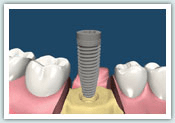 d-implant02