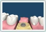 d-implant03
