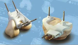 patient-specific-instrumentation1
