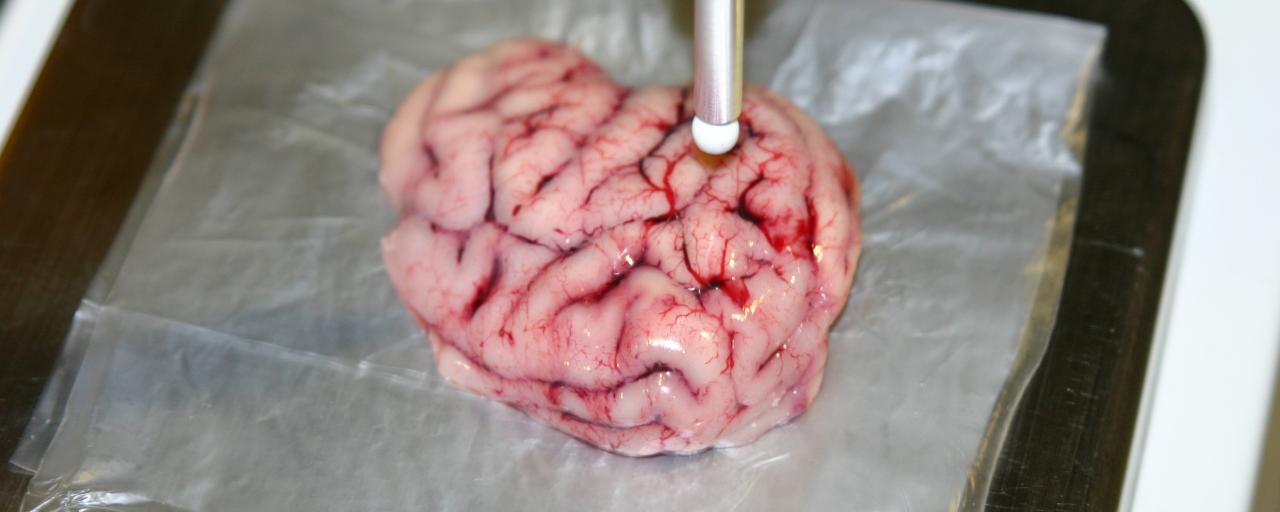 intilligent-scalpel3