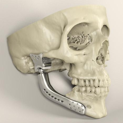 3dp_healthcaremarketreport_medical_implants