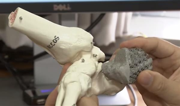 south-korean-man-successfully-implanted-countrys-first-3d-printed-heel-bone-1