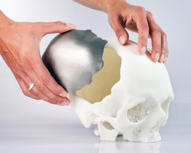 3D-printed-cranial-implant-approved-by-EU-Image-Courtesy-of-OPM-624×498