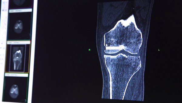 CT-scan-review_CONFORMIS