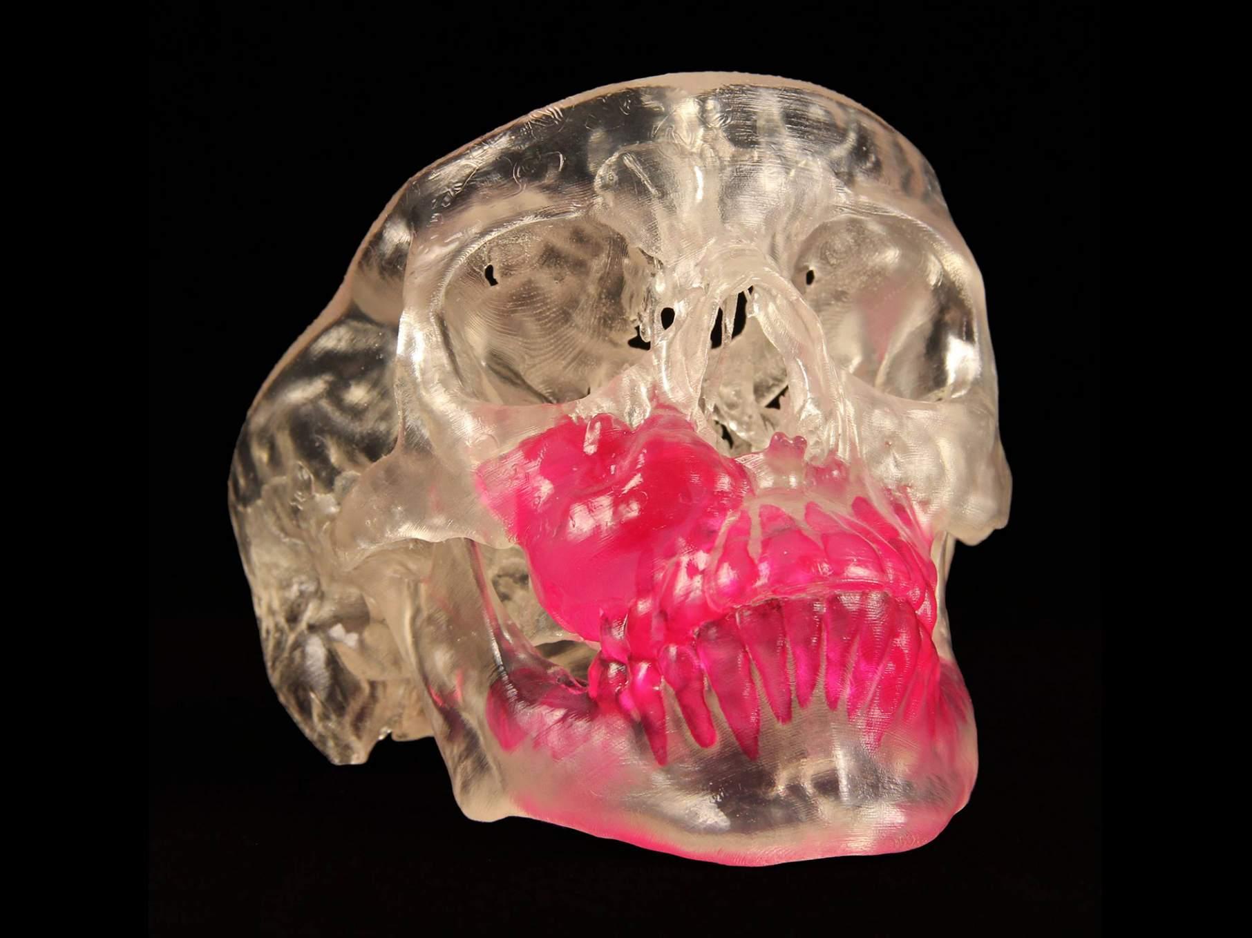 skull-906x6792x