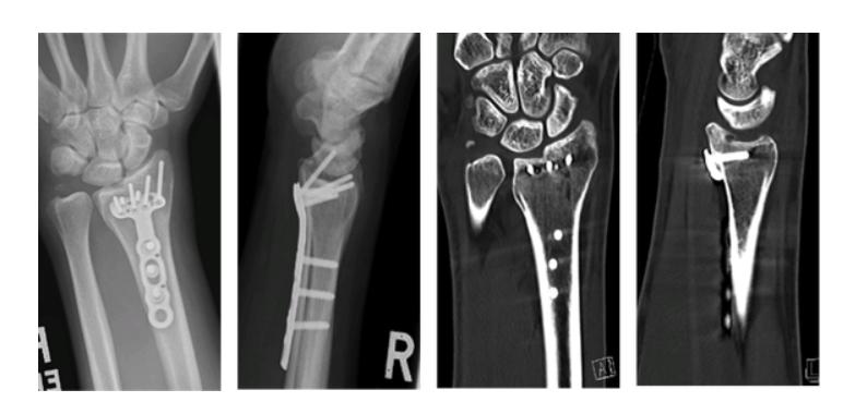 distal-radius-wrist-fracture-xrays