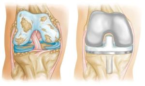 Knee Replacement Implants  OrthoInfo  AAOS