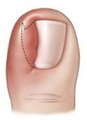 Ingrown Toenail  OrthoInfo  AAOS