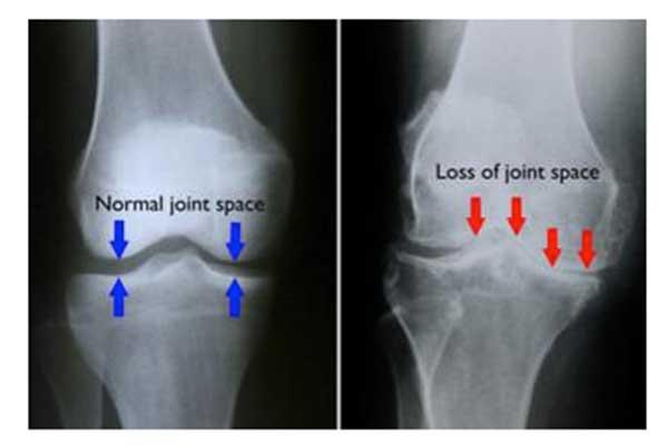 KNEE ARTHRITIS – OSTEOARTHRITIS