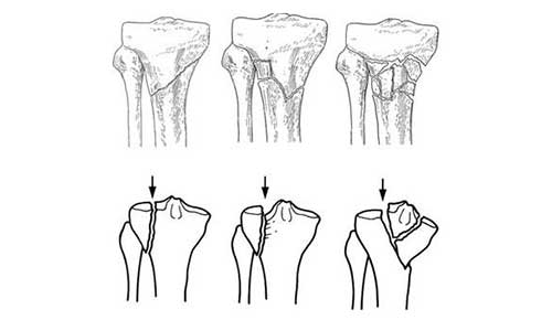 TIBIAL FRACTURES