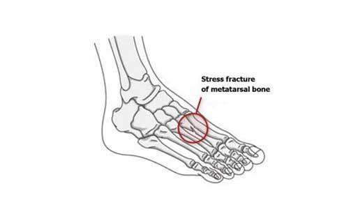 Fatigue fractures