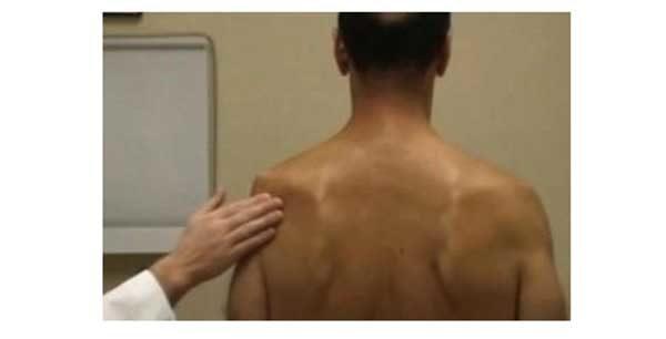 suprascapular nerve neuropathy