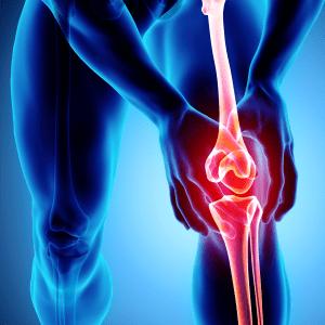 X-ray of knee with arthritis