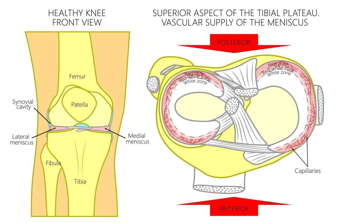 Ménisques du genou