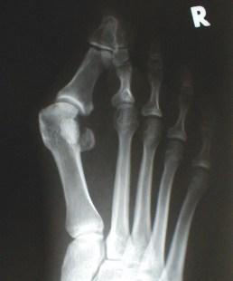 Рентгенова снимка на халукс валгус. Вътрешен метатарзален ъгъл със стойност, увеличена до 24°